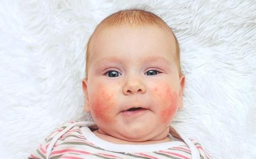 Bebeklerde Alerjik Gıdalar